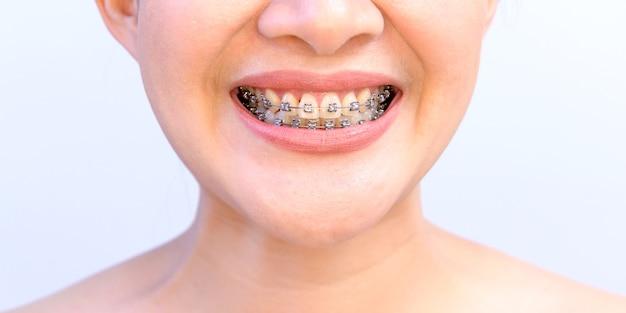 歯科矯正リテーナーを身に着けている笑顔のアジアの女性。歯科治療と健康な歯。