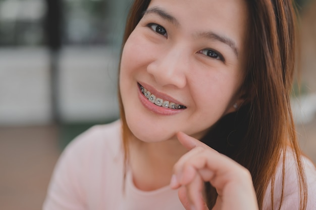 Smiling asian woman wearing orthodontic retainer. dental care and healthy teeth.