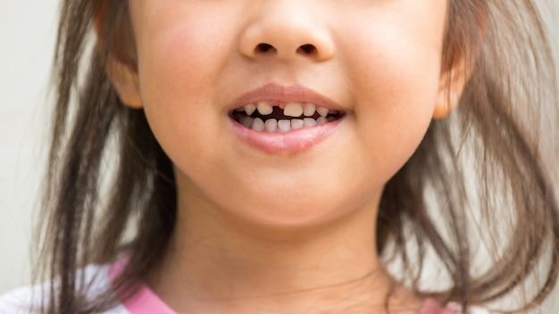 Улыбающаяся девочка со сломанным средним верхним молочным зубом случайно