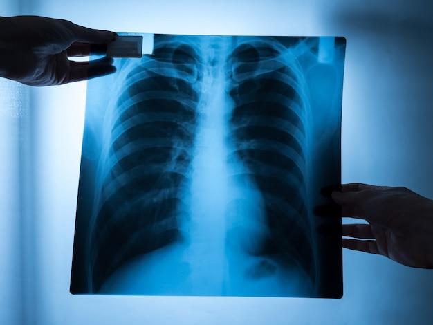 Врач-специалист исследует рентгеновский снимок пациента.