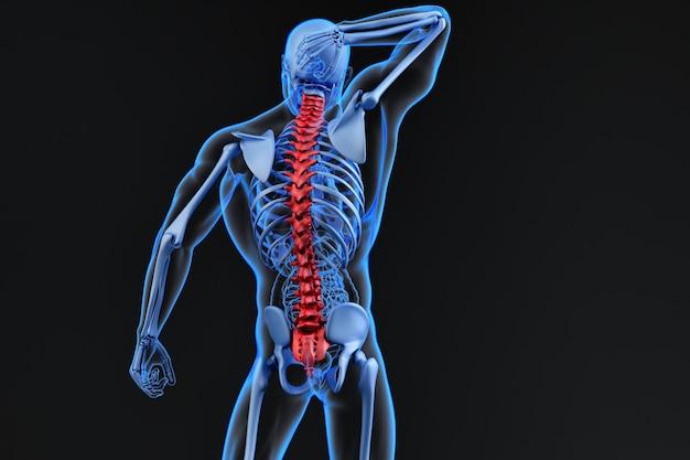 척추 통증, 요통과 목에 통증이 있는 남자