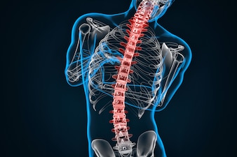 Spondylosis and Scoliosis. 3D illustration. Contains clipping path