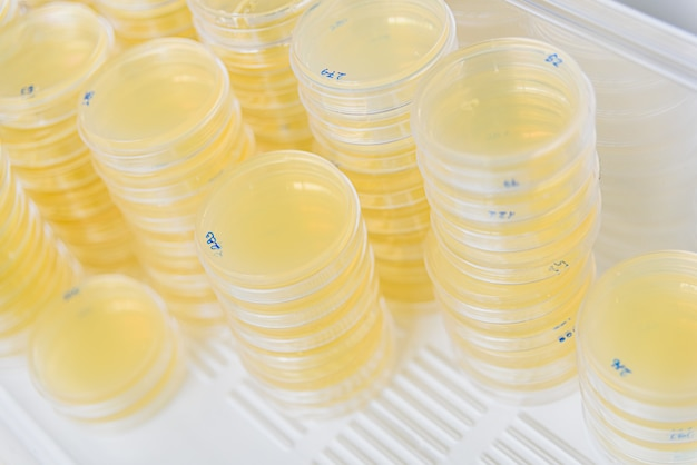 Stack of petri dishes with cultures in agar algae.