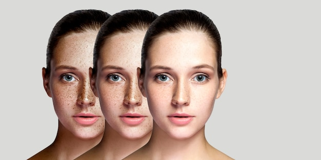 Step by step concept of healing and removing freckles. closeup portrait of beautiful brunette woman after laser treatment on face looking at camera. indoor studio shot, isolated on gray background.