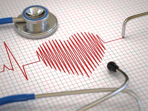 聴診器と心電図の心電図。医学の概念、3d