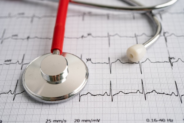 Stethoscope on electrocardiogram ecg, heart wave, heart attack, cardiogram report.