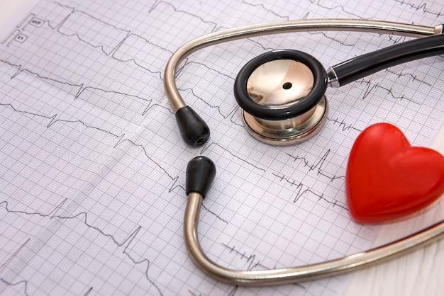 テーブルの心電図の聴診器のクローズアップ