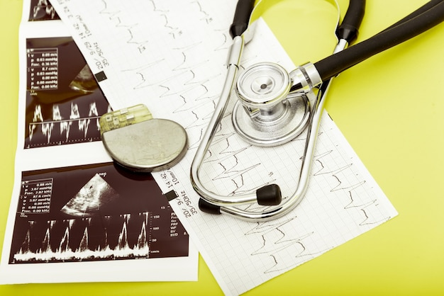Натюрморт из стетоскопа с батареей кардиостимулятора и медицинских предметов