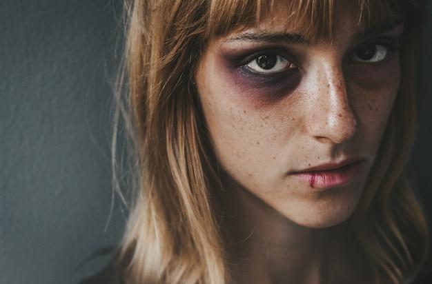 女性に対する暴力をやめなさい。深い表情で見ている顔に傷を持つ悲しい打たれた少女