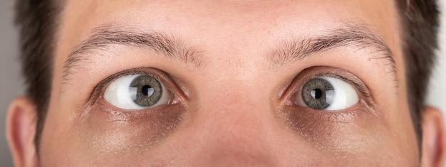 Косоглазие мужских глаз крупным планом - панорама.