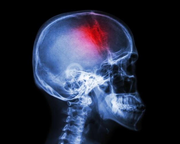 Инсульт. нарушение мозгового кровообращения. рентгеновский снимок человеческого черепа