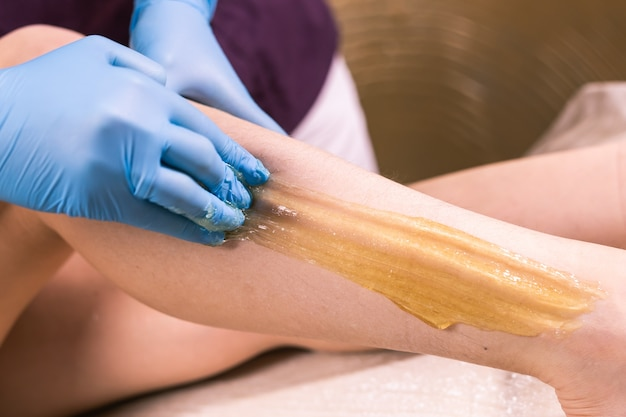 Sugaring epilation skin care with liquid sugar at legs close-up.