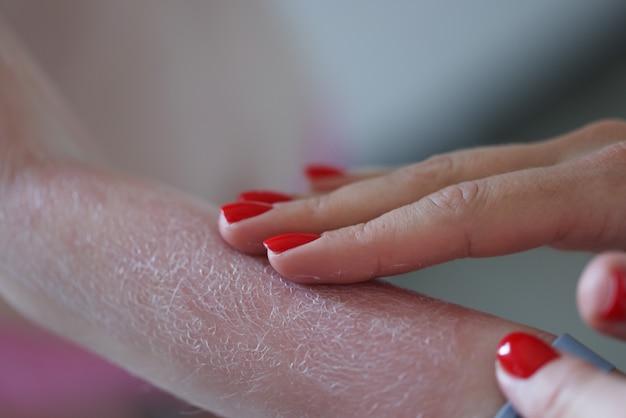 子供の赤い手に日焼け止めクリームを塗る