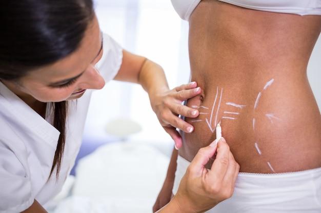 外科医が脂肪吸引とセルライト除去のために女性の腹部に線を引く