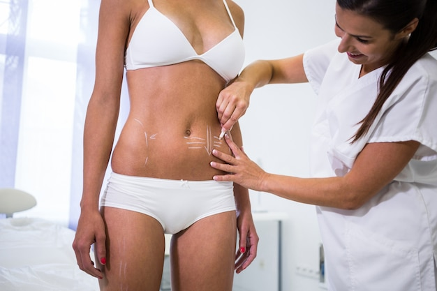 Surgeon drawing lines on womans abdomen for liposuction and cellulite removal