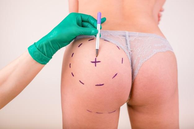 整形手術前の女性の体に外科医がマークを描く、白い表面