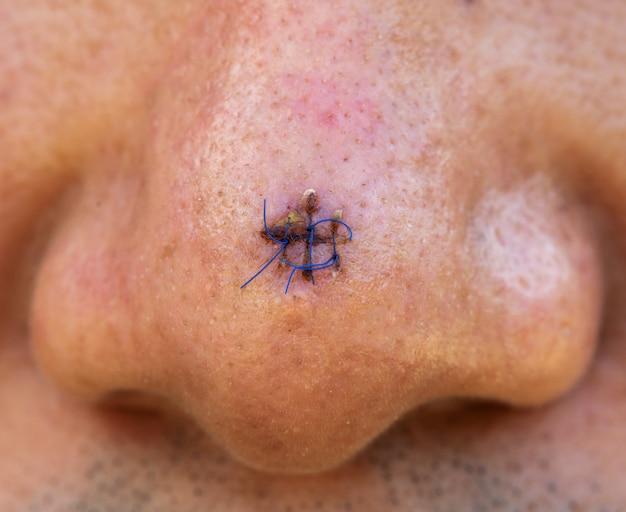 코에 봉합 상처