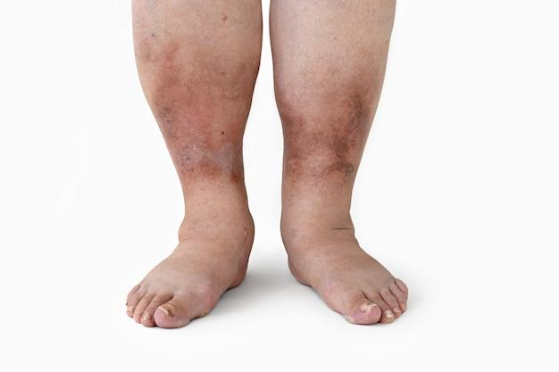 Отек ноги с воспалением при диабетической нефропатии у женщины крупным планом