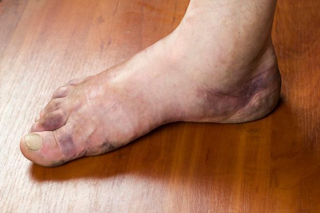 骨折後の男性の足の腫れ。人間の足に紫色のあざ