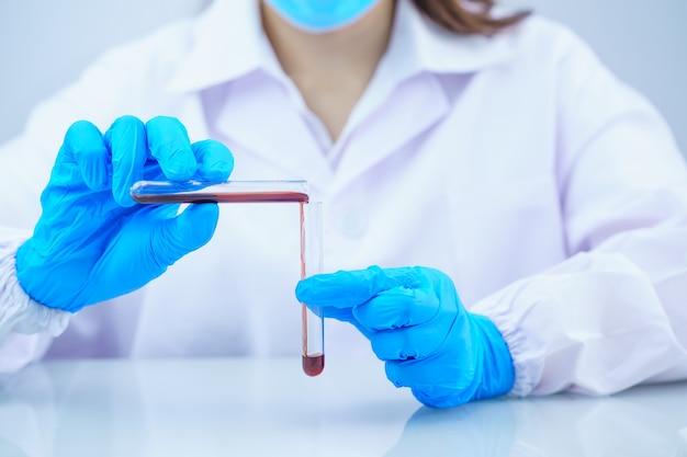 바이러스 분석을 테스트하기 위해 실험실에서 테스트 튜브에서 혈액 샘플을 분석하는 기술자 과학자