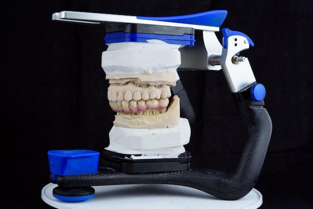 Керамические зубные протезы на распечатанной акриловой модели в артикуляторе в зуботехнической лаборатории
