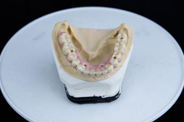 Teeth ceramics dentures on printed acrylic model in dental lab. top view.
