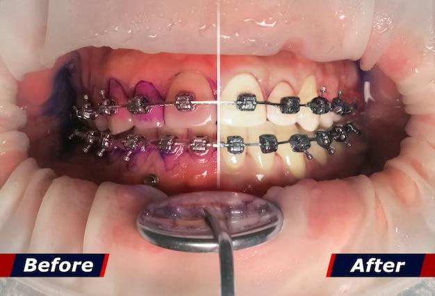 歯石を洗浄する前と後の効果を持つ中かっこで歯