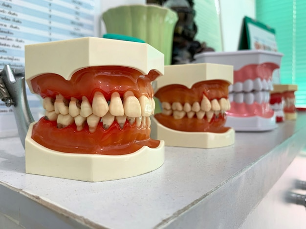 Teeth and jaw model on white table in the dentist clinic.