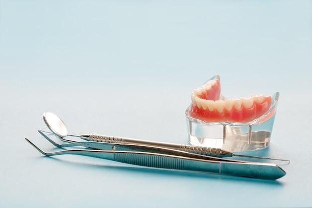 Модель зубов, показывающая модель мостовидного протеза на имплантате