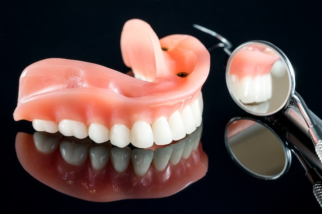 Teeth model showing an implant crown bridge model.