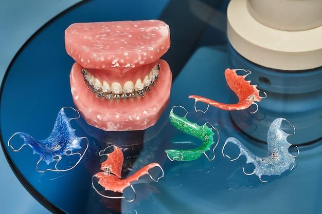 金属ワイヤード歯科用ブレースを備えた歯のモデル、歯科矯正プレゼンテーション