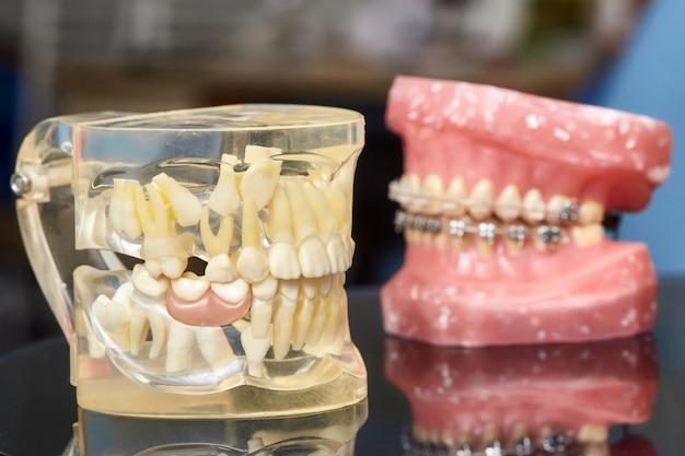 금속 유선 치과 교정기와 치아 모델