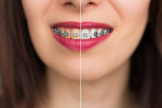 Teeth whitening before after. woman teeth before and after whitening. happy smiling woman face close up. dental health concept.