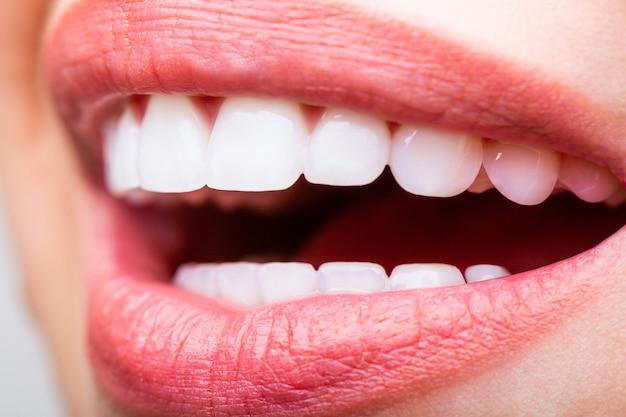 Teeth whitening. dental health concept. teeth whitening procedure. dental care. dentistry concept. perfect healthy teeth. closeup shot of woman's toothy smile. perfect healthy teeth smile woman.