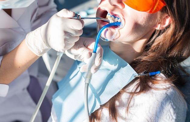 歯科医院での歯のホワイトニング手順