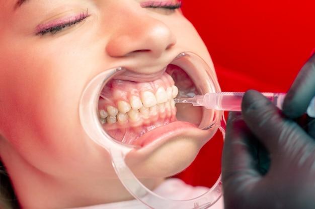 歯のホワイトニング手順若い女の子の歯科医は、口の中で歯の拡張器に漂白剤を置きます