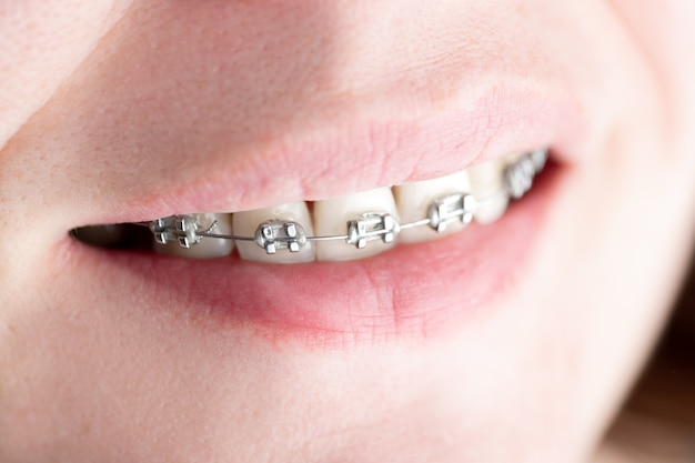 Teeth with braces installed close-up
