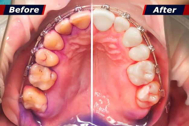 歯石洗浄前後の効果のある歯