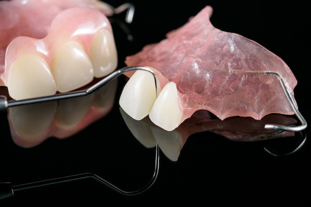 Temporary denture and dental tools.