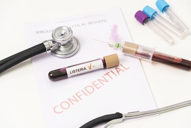 리스테리아균 검사, 리스테리아증 진단을 위한 혈액 샘플이 있는 시험관.