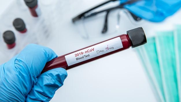 Пробирка с отрицательной пробой крови на covid-19, новый коронавирус. ученый в синих перчатках для защиты. исследование вакцины против вируса 2019-ncov