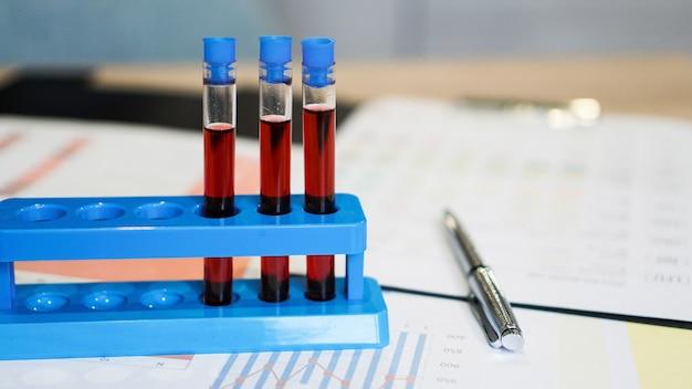 Пробирки на подставке и колба с красной кровью по медицинским документам. анализ, диагностика и лечение болезней и вирусов.