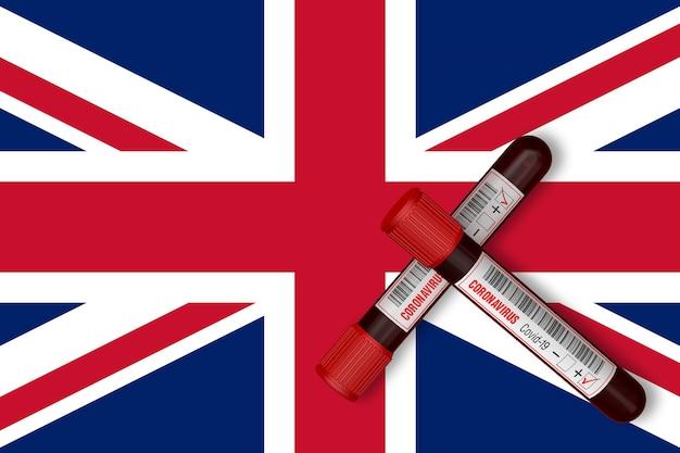 영국 국기 3d 렌더링의 배경에 2019ncov가 새겨진 테스트 튜브