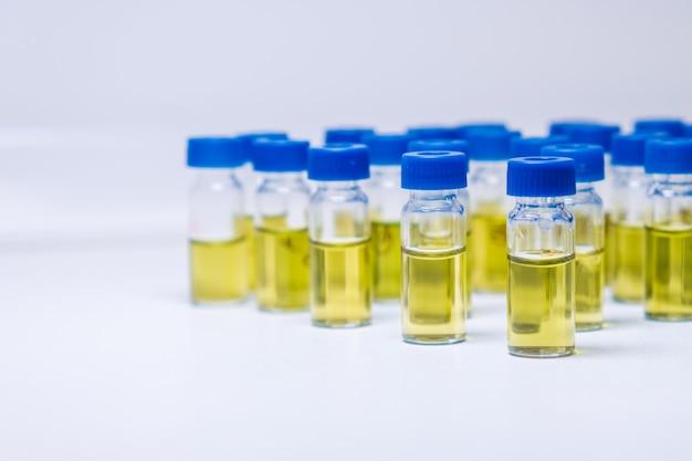 Пробирки с образцом мочи для анализа вэжх в лаборатории.