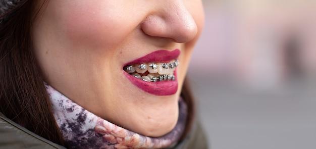 女の子の笑顔の口の中のブレースシステム、歯のマクロ写真、赤い唇のクローズアップ。通りを歩いている女の子