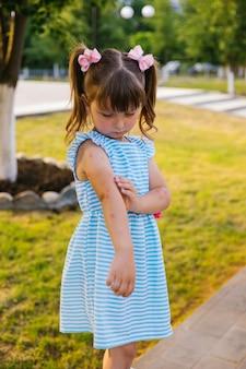 아이가 모기에 물렸습니다. 한 소녀가 손에 벌레 물린 것을 빗습니다. 피부에 발적과 가려움증.