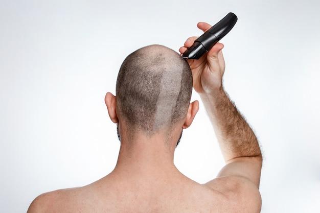 대머리와 탈모증의 개념. 한 남자가 이발기를 들고 머리 위로 머리카락을 면도합니다. 뒤에서 보기입니다. 복사 공간