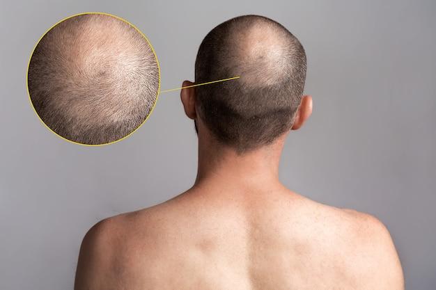 남성 탈모증과 탈모의 개념. 대머리가 있는 남자의 머리 후면. 맨 어깨. 문제 영역 확대 사진