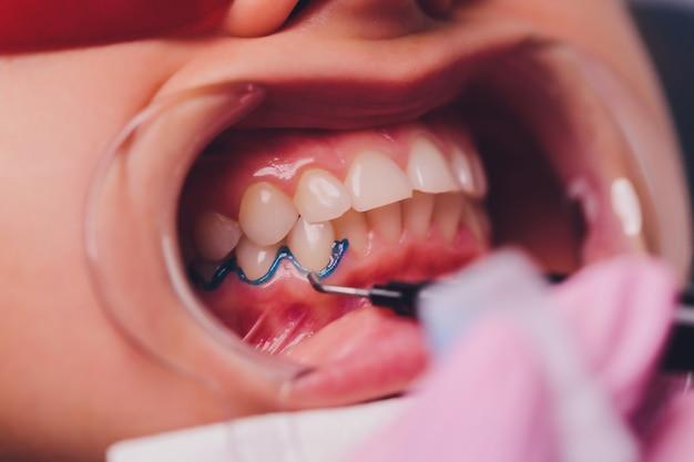 患者の歯の色合いを漂白治療用のサンプルと比較する歯科医。