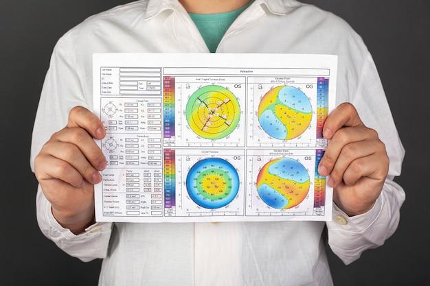 Врач держит в руках топографию роговицы с диагнозом кератоконус. дистрофия роговицы.